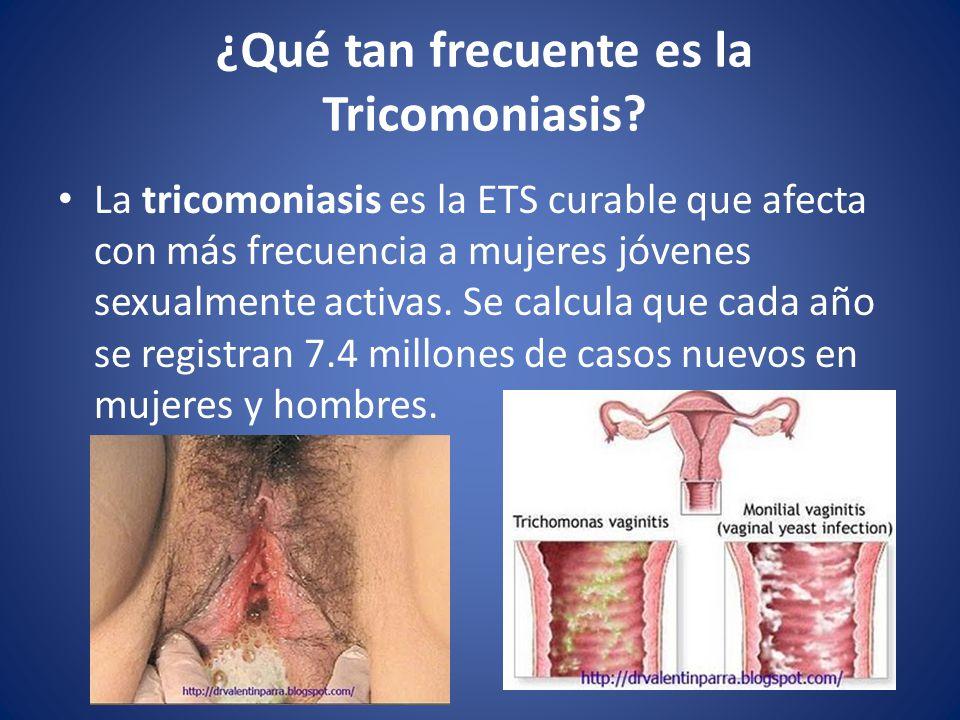 ¿Qué tan frecuente es la Tricomoniasis