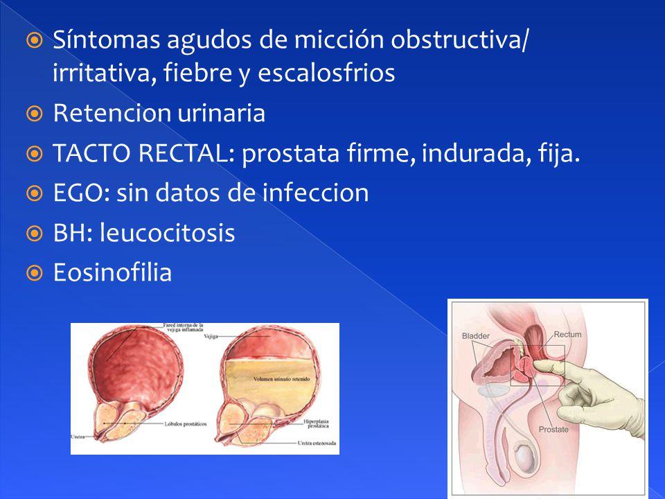 Síntomas agudos de micción obstructiva/ irritativa, fiebre y escalosfrios
