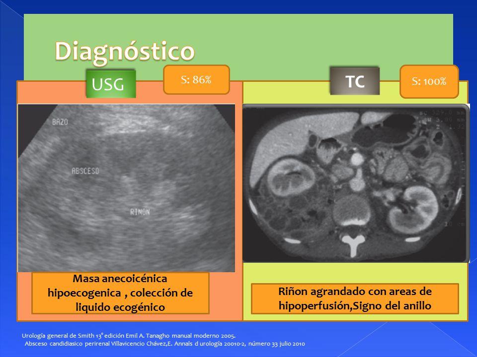 Diagnóstico TC USG S: 86% S: 100%