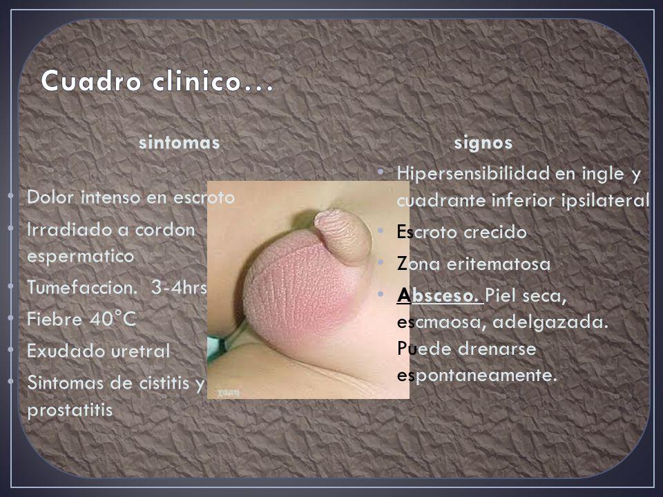 Cuadro clinico… sintomas signos Dolor intenso en escroto
