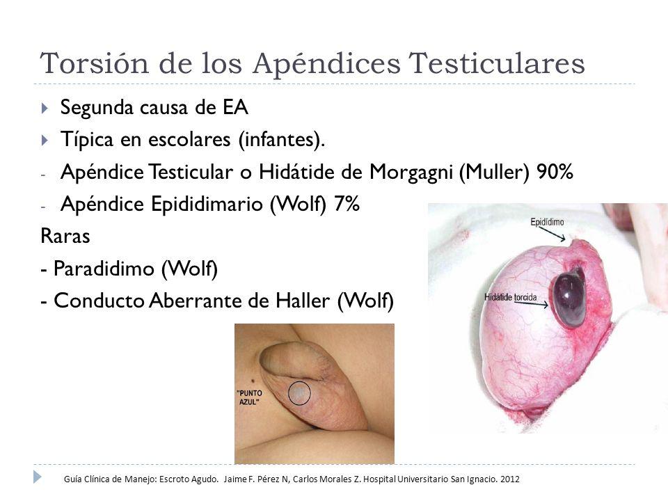 Torsión de los Apéndices Testiculares
