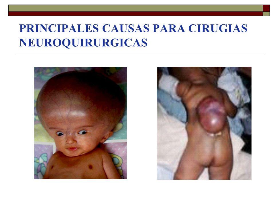 PRINCIPALES CAUSAS PARA CIRUGIAS NEUROQUIRURGICAS