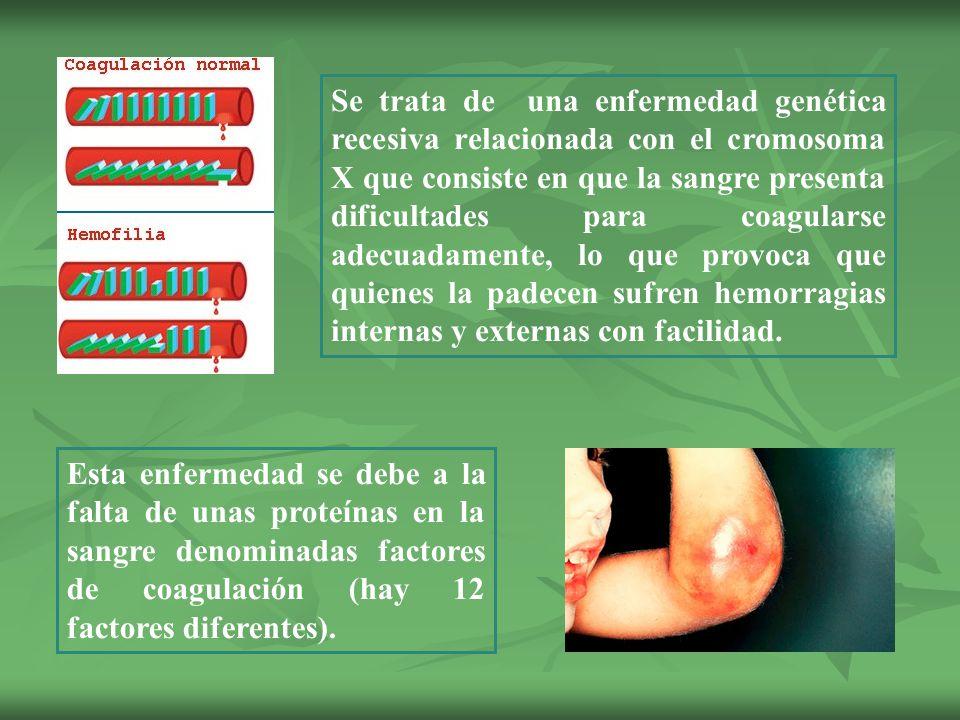 Encantador Fotos De Uñas Que Muestran La Enfermedad Regalo - Ideas ...