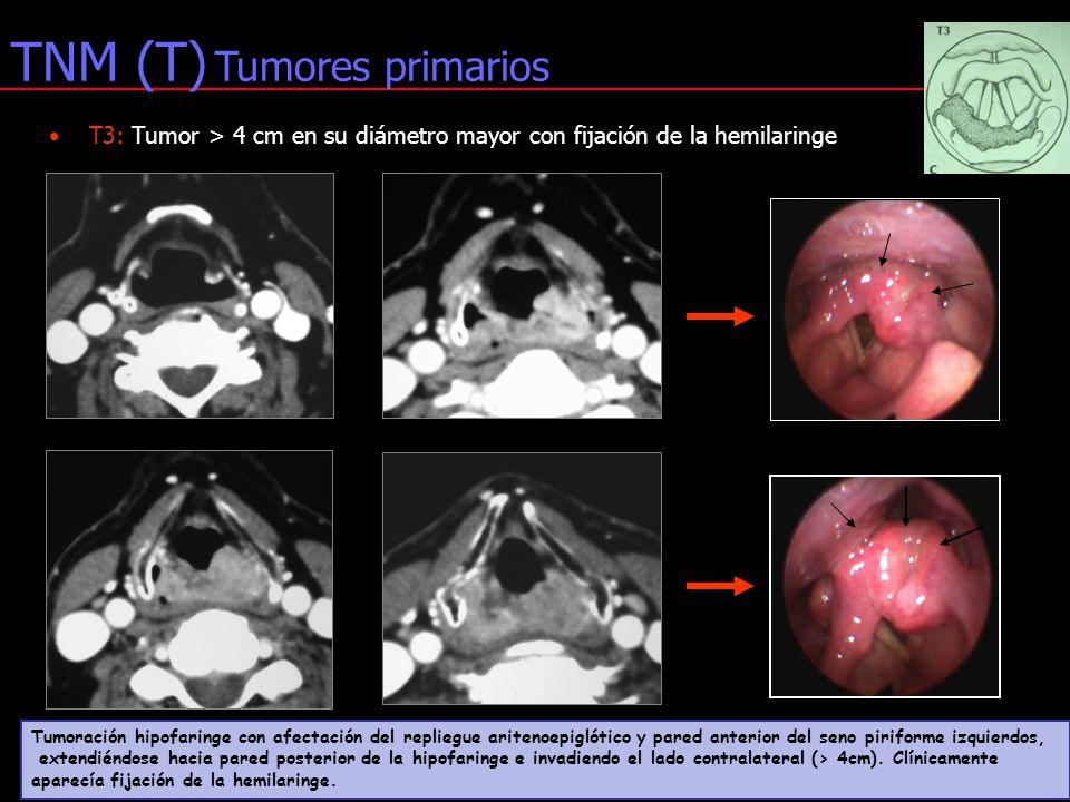 Atractivo La Anatomía Del Seno Piriforme Viñeta - Anatomía de Las ...