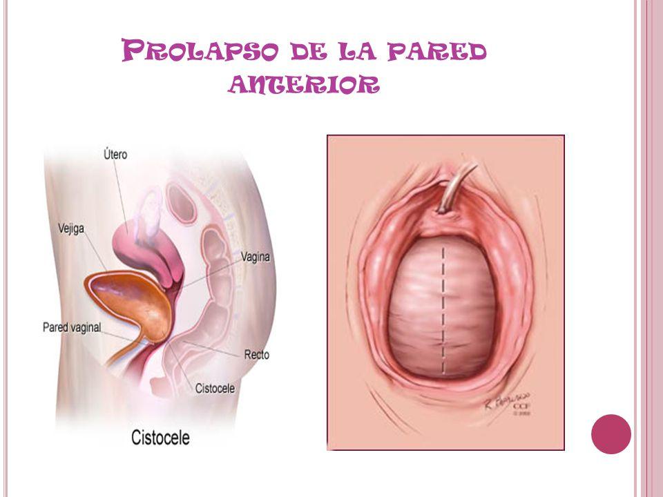 Perfecto Anatomía De La Pared Vaginal Festooning - Anatomía de Las ...