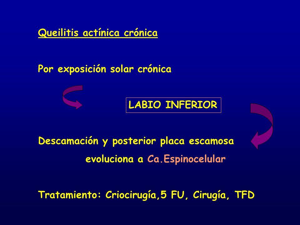 Queilitis actínica crónica