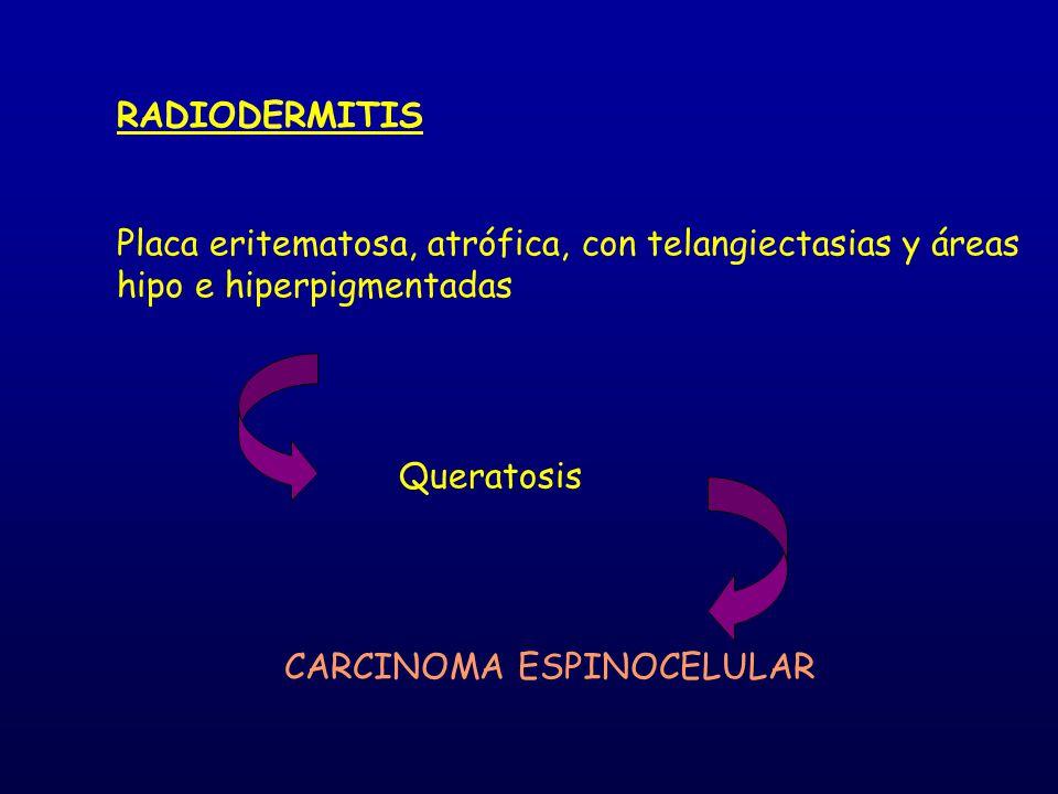 RADIODERMITIS Placa eritematosa, atrófica, con telangiectasias y áreas hipo e hiperpigmentadas. Queratosis.