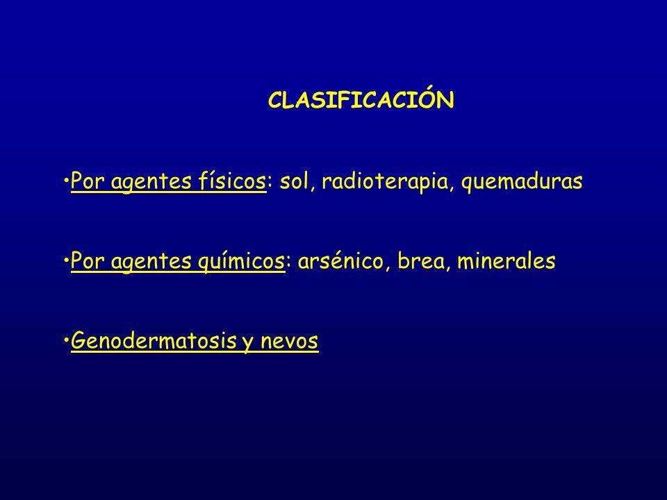 CLASIFICACIÓN Por agentes físicos: sol, radioterapia, quemaduras. Por agentes químicos: arsénico, brea, minerales.