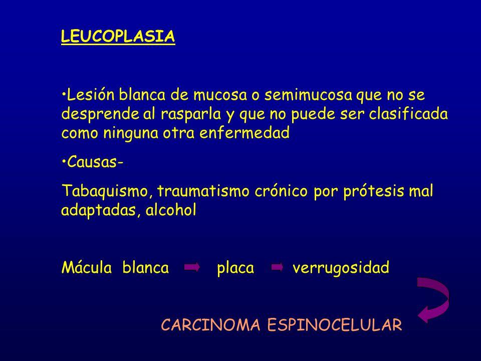 LEUCOPLASIA Lesión blanca de mucosa o semimucosa que no se desprende al rasparla y que no puede ser clasificada como ninguna otra enfermedad.