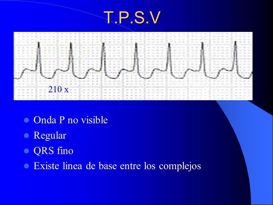 Arritmias cardiacas arritmias cardiacas ppt video online descargar - Vitrificateur no visible ...