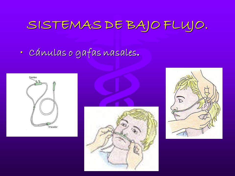 Sistemas de flujo oxigenoterapia y nebulizacion ppt descargar - Sistema de nebulizacion ...