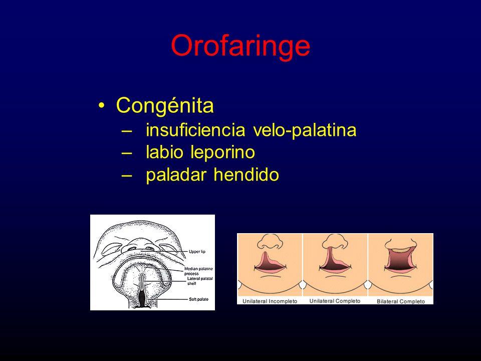 Orofaringe Congénita insuficiencia velo-palatina labio leporino