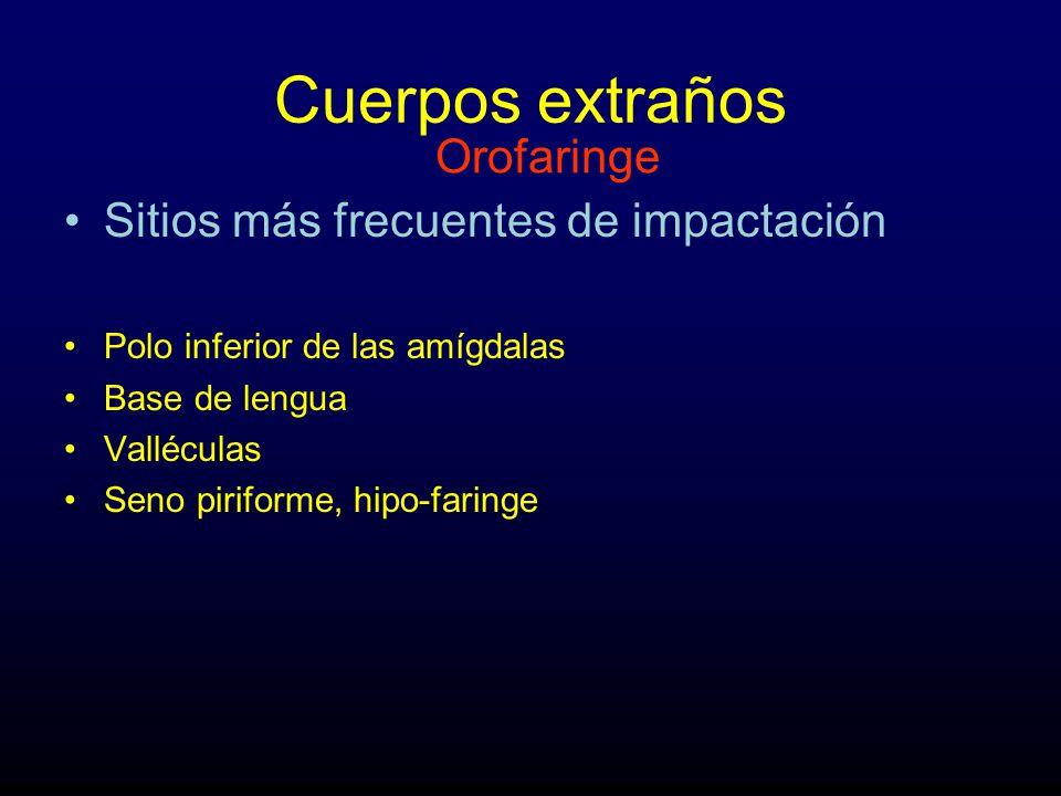 Cuerpos extraños Orofaringe Sitios más frecuentes de impactación