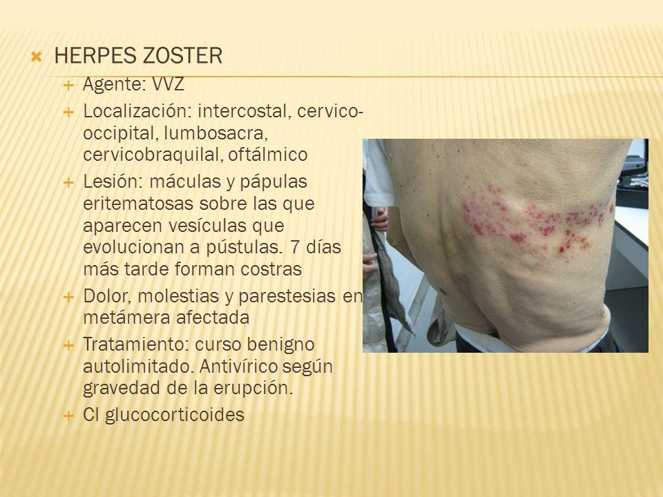 HERPES ZOSTER Agente: VVZ