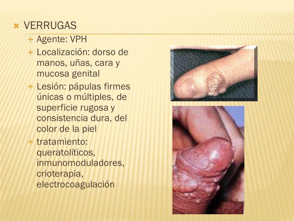 VERRUGAS Agente: VPH. Localización: dorso de manos, uñas, cara y mucosa genital.