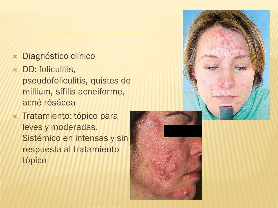 Diagnóstico clínico DD: foliculitis, pseudofoliculitis, quistes de millium, sífilis acneiforme, acné rósácea.