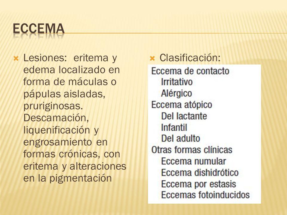 ECCEMA