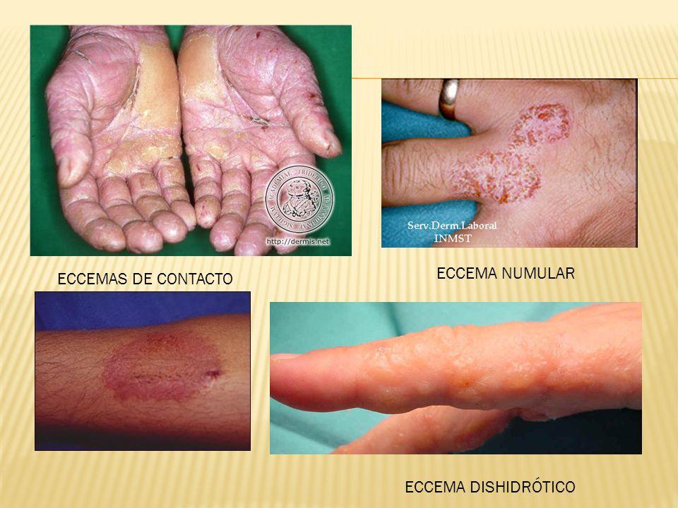ECCEMA NUMULAR ECCEMAS DE CONTACTO ECCEMA DISHIDRÓTICO