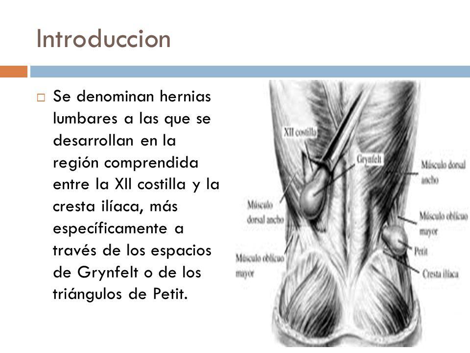 Hermosa Anatomía Hernia De Spiegel Colección - Imágenes de Anatomía ...
