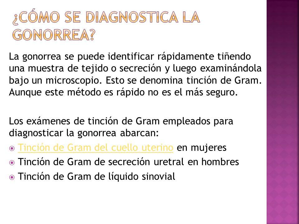 ¿Cómo se diagnostica la gonorrea