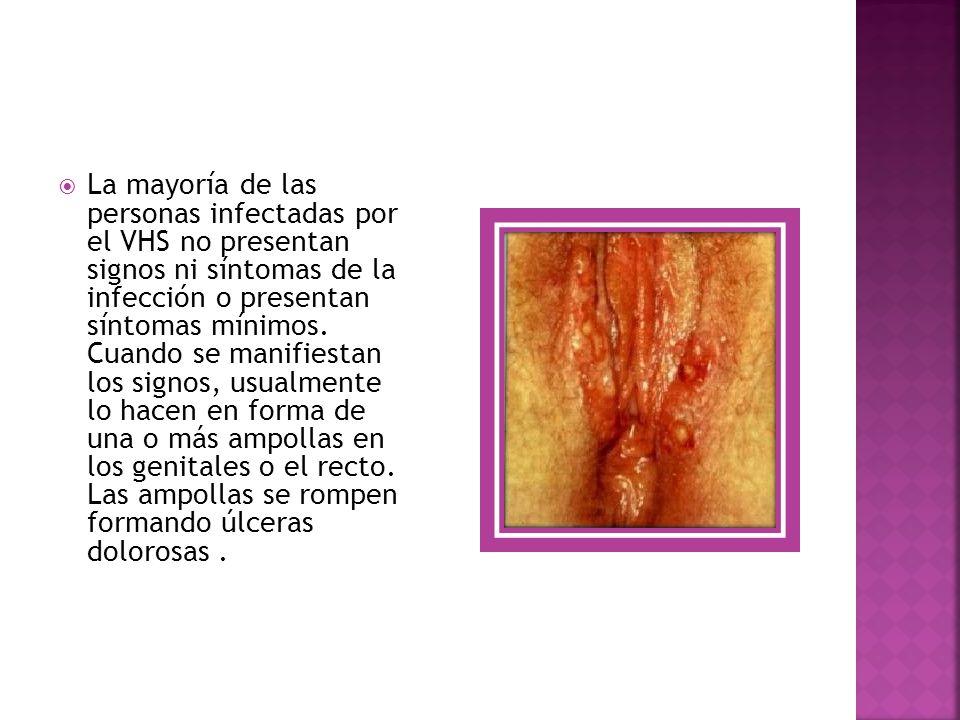 La mayoría de las personas infectadas por el VHS no presentan signos ni síntomas de la infección o presentan síntomas mínimos.
