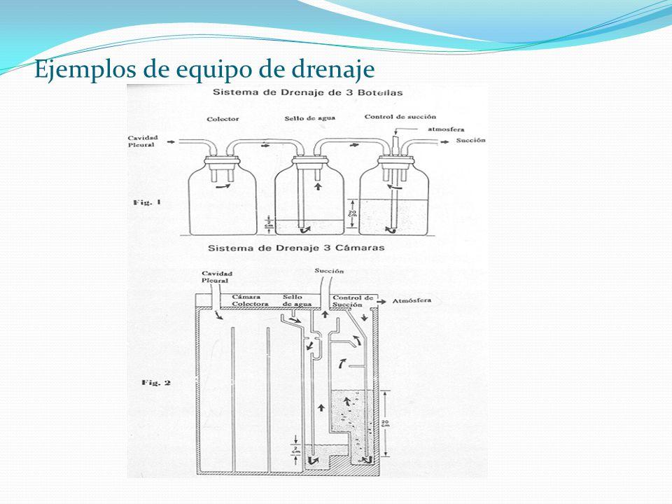 Ejemplos de equipo de drenaje