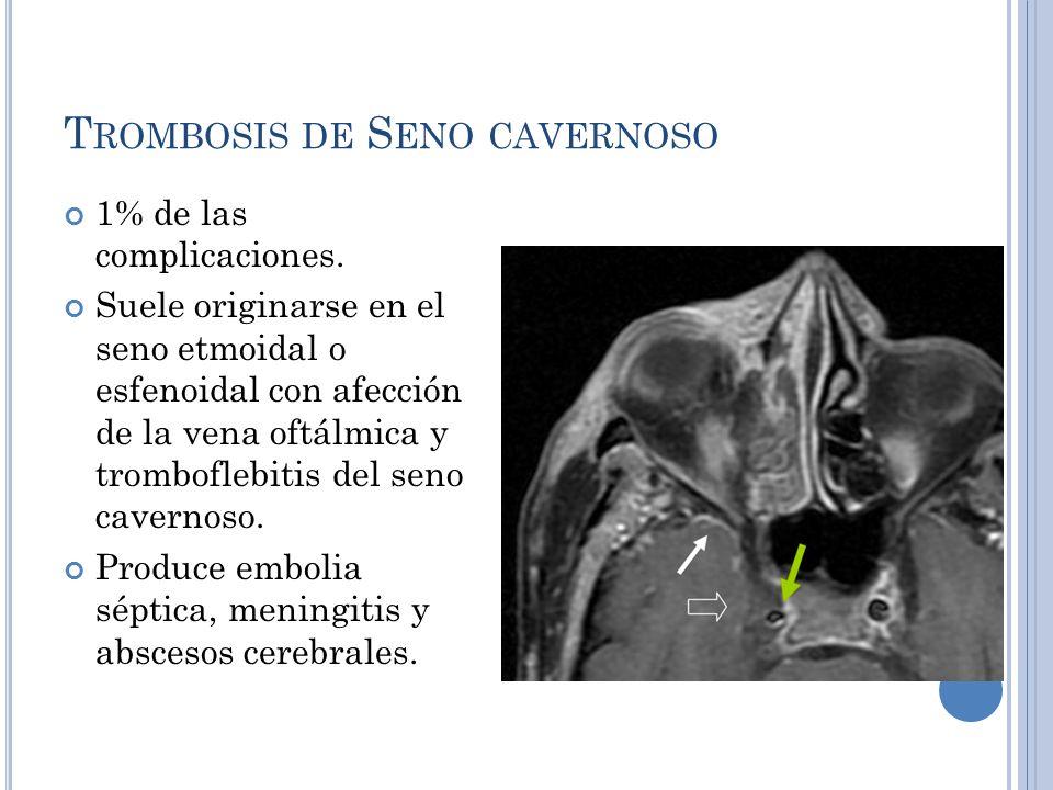 Asombroso La Anatomía Del Seno Cavernoso Mri Regalo - Anatomía de ...