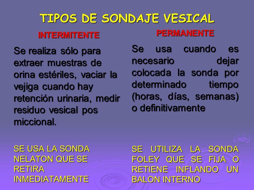 TIPOS DE SONDAJE VESICAL