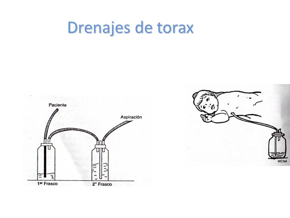 Drenajes de torax