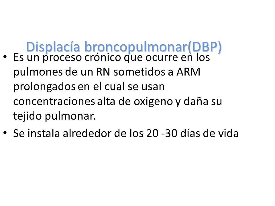 Displacía broncopulmonar(DBP)