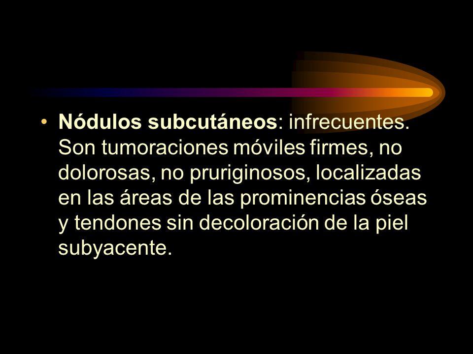Nódulos subcutáneos: infrecuentes