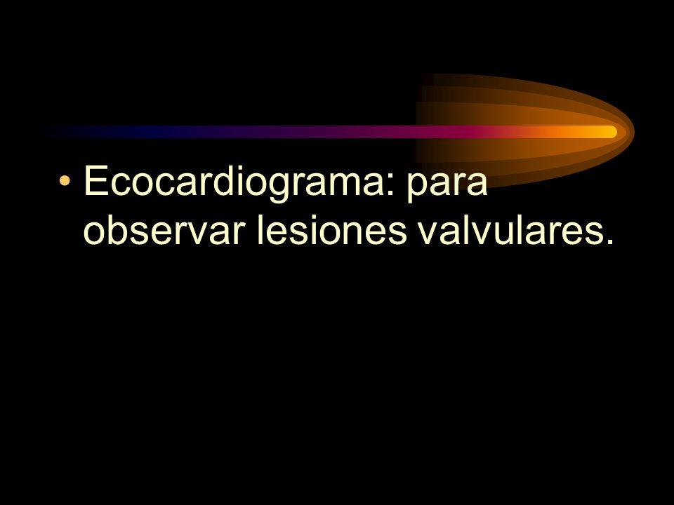 Ecocardiograma: para observar lesiones valvulares.