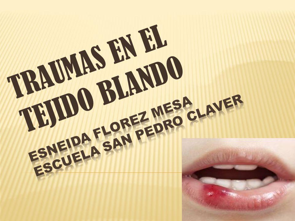 ESNEIDA FLOREZ MESA ESCUELA SAN PEDRO CLAVER