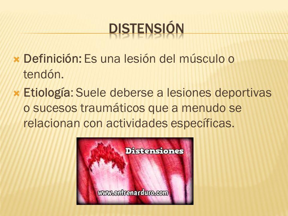 Distensión Definición: Es una lesión del músculo o tendón.