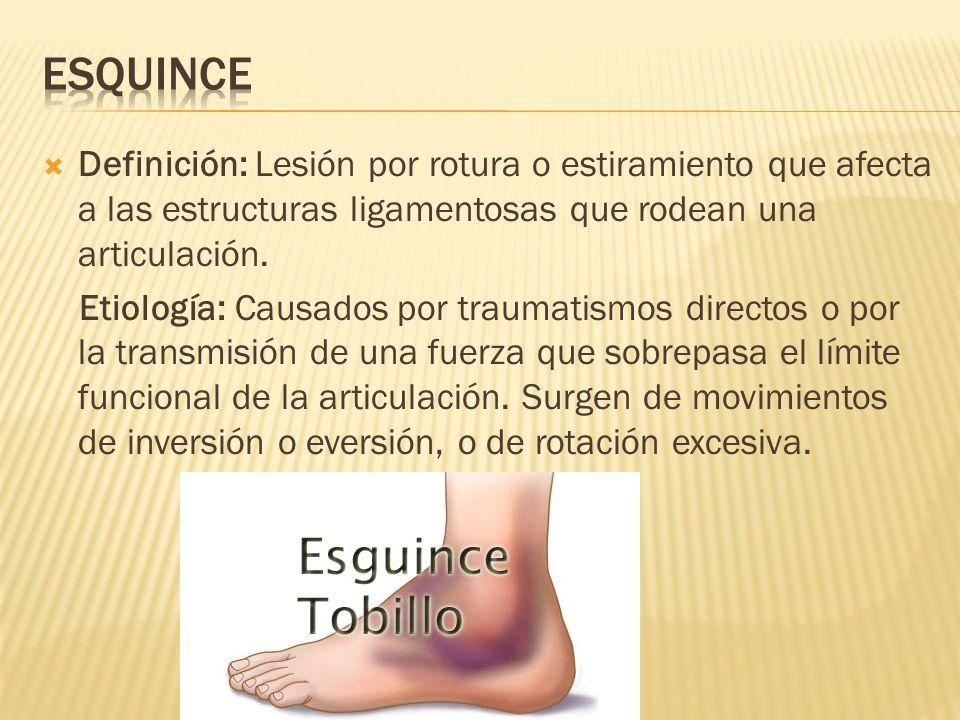 esquince Definición: Lesión por rotura o estiramiento que afecta a las estructuras ligamentosas que rodean una articulación.