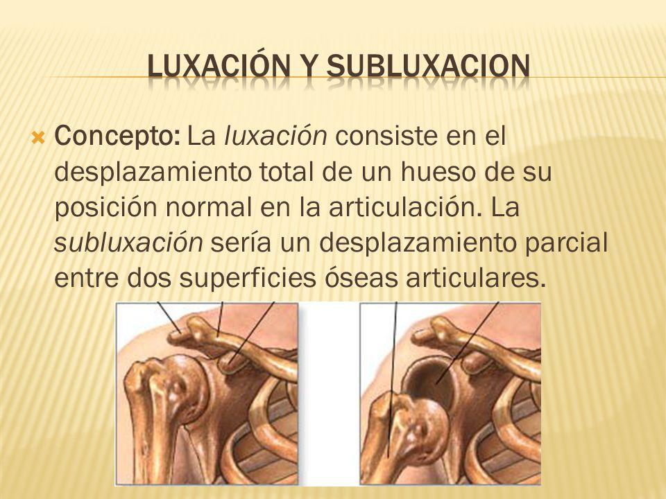 luxación Y SUBLUXACION