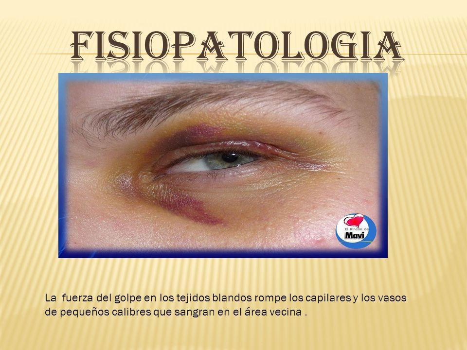 FISIOPATOLOGIA La fuerza del golpe en los tejidos blandos rompe los capilares y los vasos de pequeños calibres que sangran en el área vecina .