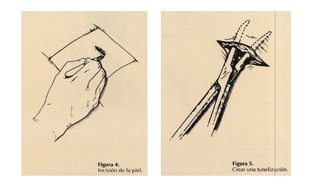 Incisión de la piel y tejido SC: Realizar una incisión de aproximadamente 2 cm por debajo del espacio elegido, que permitirá el paso del dedo índice.