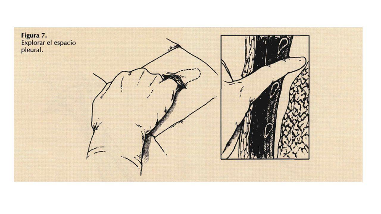 Exploración del espacio pleural: Introducir el dedo índice para asegurar el trayecto e inspeccionar la cavidad pleural