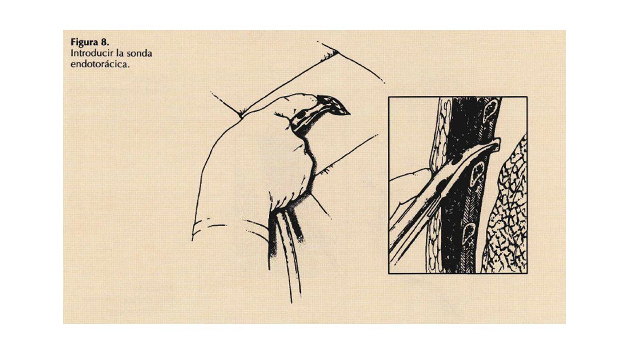 Colocación del tubo endotorácico: Clampar el tubo de tórax en su extremo tal con la pinza de Kocher e introducirlo en la cavidad pleura) en dirección apical, para drenar un neumotórax, o posterobasal, para drenar un derrame o un hemotórax.