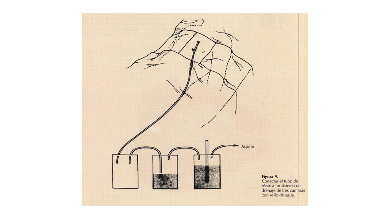 Conexión al sistema de drenaje: La colocación adecuada del tubo se constata por la obtención de burbujeo o líquido y por la oscilación del sello de agua con la respiración.