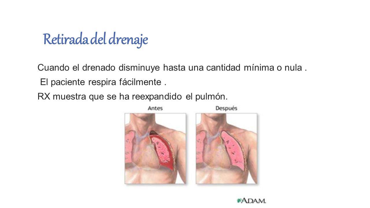 Retirada del drenaje Cuando el drenado disminuye hasta una cantidad mínima o nula . El paciente respira fácilmente .
