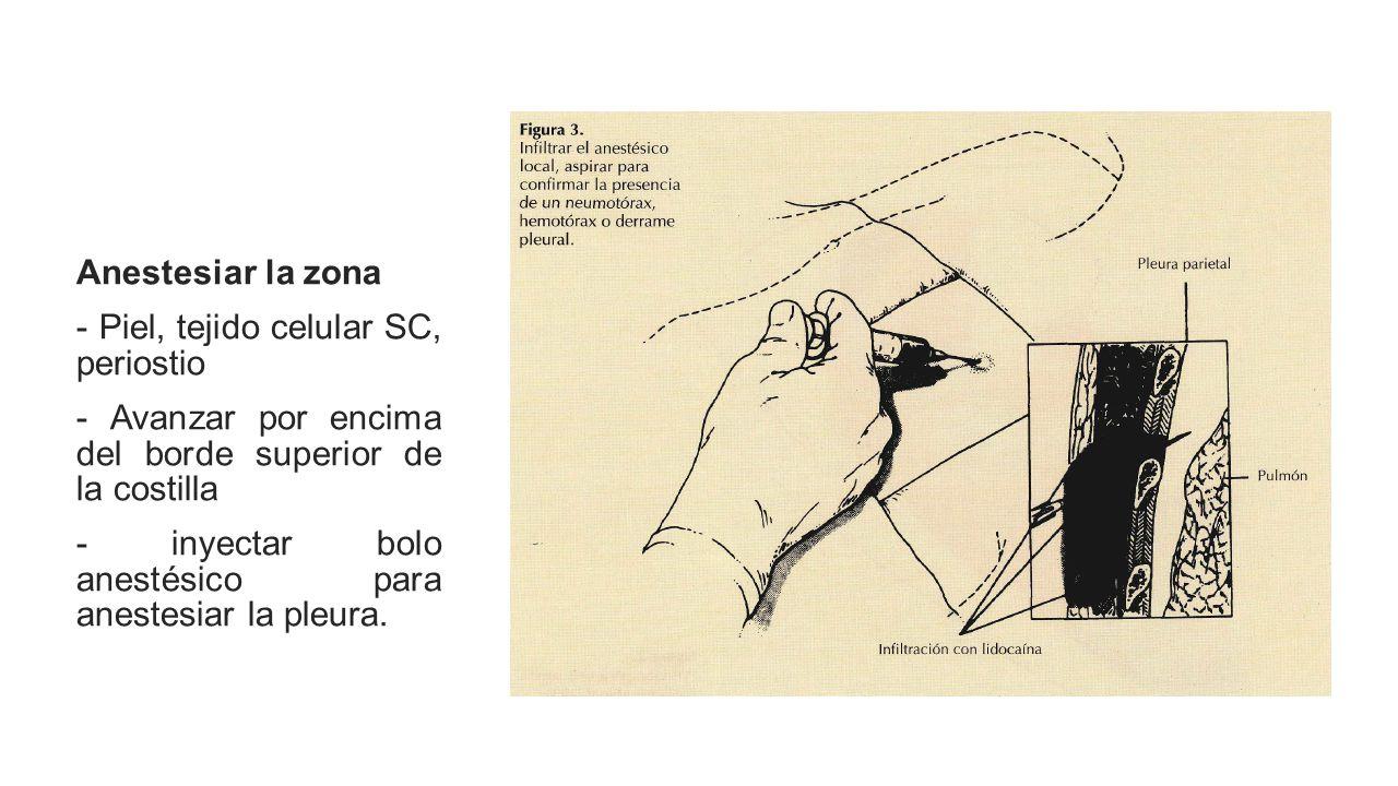 Anestesiar la zona - Piel, tejido celular SC, periostio. - Avanzar por encima del borde superior de la costilla.