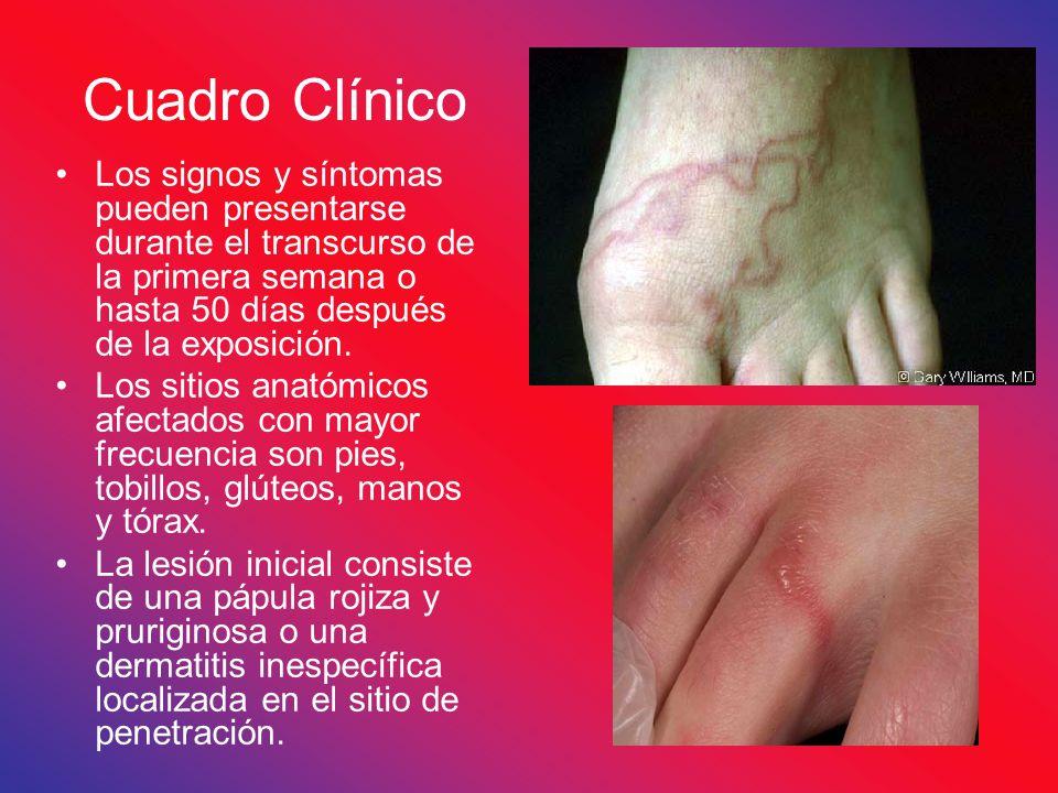 Cuadro Clínico Los signos y síntomas pueden presentarse durante el transcurso de la primera semana o hasta 50 días después de la exposición.