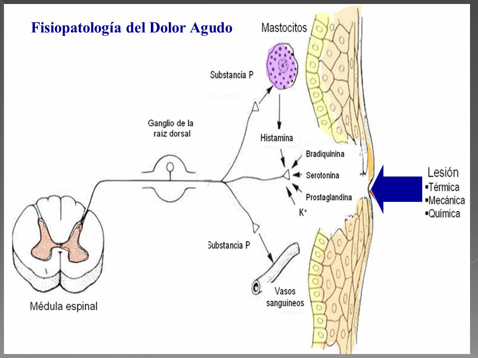 Excelente La Anatomía Y La Fisiología Del Dolor Friso - Imágenes de ...