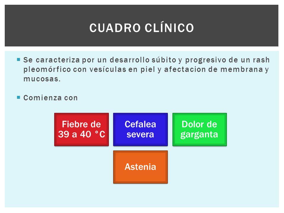 Cuadro clínico Se caracteriza por un desarrollo súbito y progresivo de un rash pleomórfico con vesículas en piel y afectacion de membrana y mucosas.