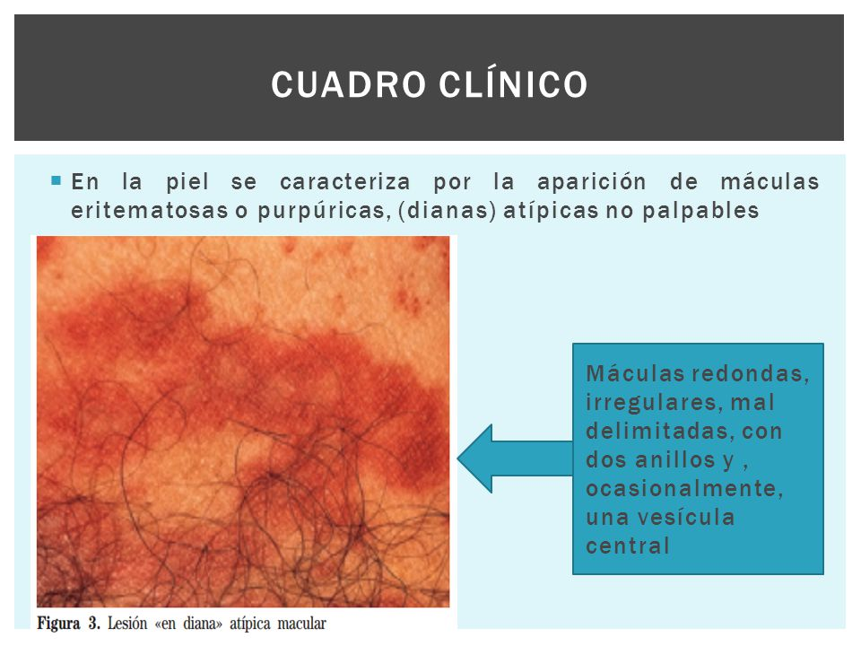 Cuadro clínico En la piel se caracteriza por la aparición de máculas eritematosas o purpúricas, (dianas) atípicas no palpables.