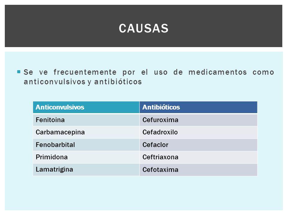 Causas Se ve frecuentemente por el uso de medicamentos como anticonvulsivos y antibióticos. Anticonvulsivos.