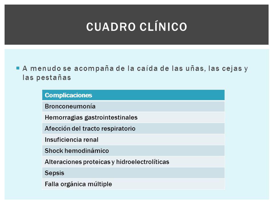 Cuadro clínico A menudo se acompaña de la caída de las uñas, las cejas y las pestañas. Complicaciones.
