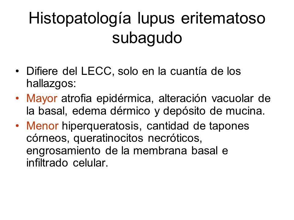 Histopatología lupus eritematoso subagudo